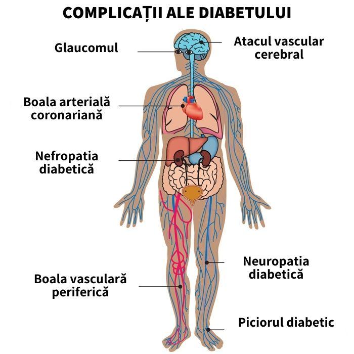 complicatii ale diabetului